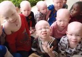 albinos keep